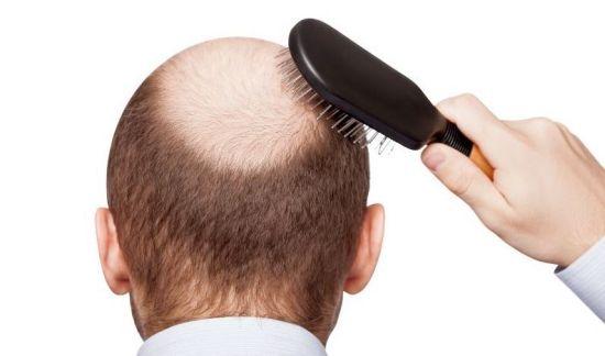 tratament pentru caderea parului alopecie
