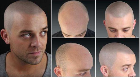 alopecia-micropigmentarea scalpului la barbati