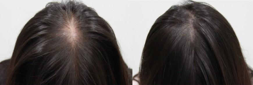 alopecia micropigmentarea scalpului la femei