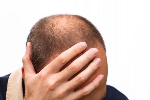 alopecia tratamente nechirurgicale