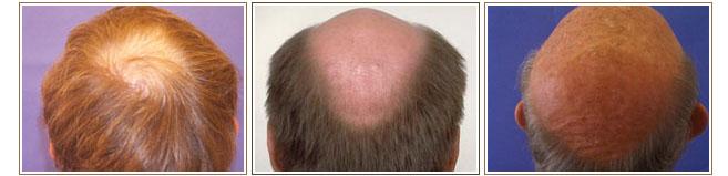alopecia androgenetica la barbati