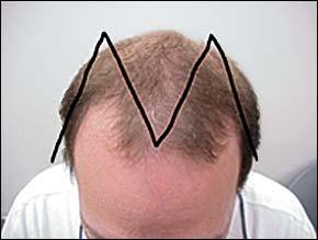 alopecia androgenetica frunte barbati