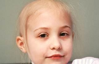 caderea parului chimioterapie copii