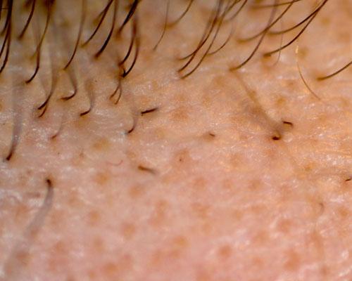 alopecia areata zone de chelie