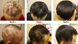 fototerapia alopecia areata