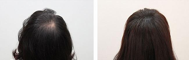 micropigmentare scalp la femei
