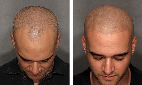 micropigmentare scalp