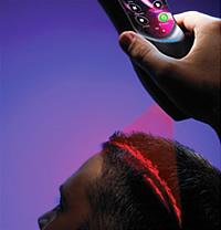 terapia cu laser pentru par