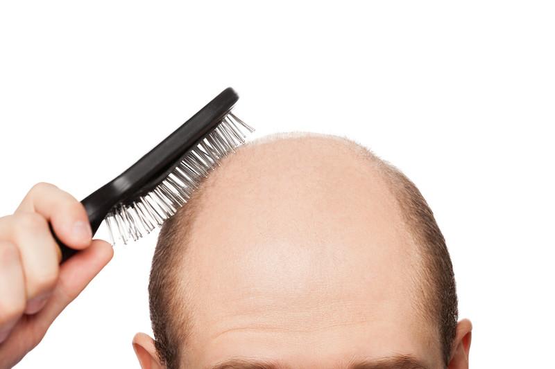 tratamente pentru par alopecie