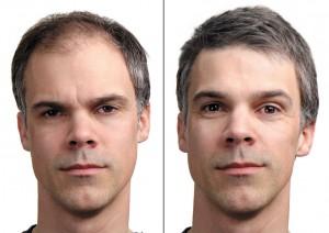 tratamente chirurgicale implant de par