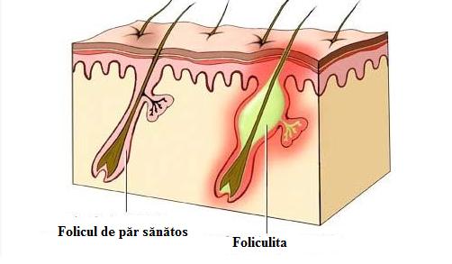 caderea parului foliculita