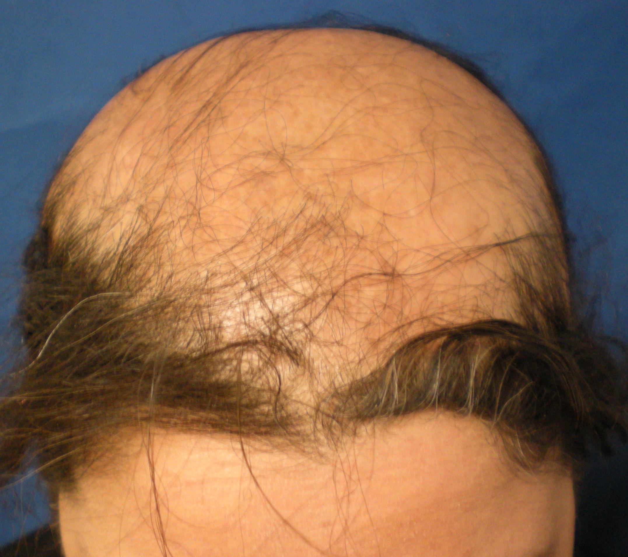 caderea parului alopecia cicatriciala centrala centrifuga