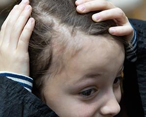 caderea parului effluvium telogen la copii
